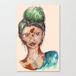 vitiligo girl Canvas Print