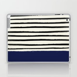 Navy x Stripes Laptop & iPad Skin