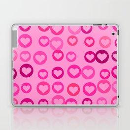 Love Hearts Laptop & iPad Skin