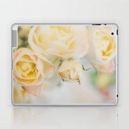 Entranced... Laptop & iPad Skin