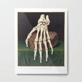 Skelet van een hand (White border) Metal Print