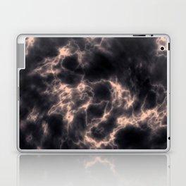 RoAndCo Laptop & iPad Skin
