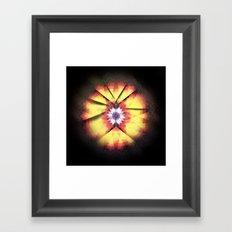 Cherub Under the Microscope: 3 Framed Art Print