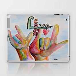 CODA - Children of Deaf Adults Laptop & iPad Skin