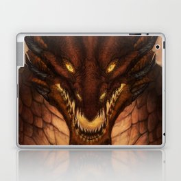 King Laptop & iPad Skin