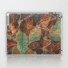 Ecstatic Pelvis (Meat Flame) Laptop & iPad Skin