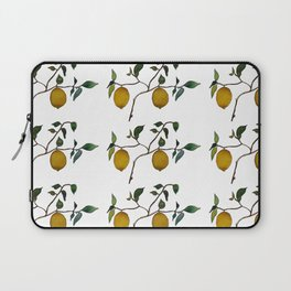 Lemons // Squeeze the Day Laptop Sleeve