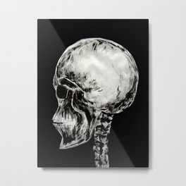 January 3, 2016 (Year of radiology) Metal Print