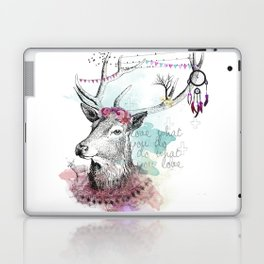 Love what you are Laptop & iPad Skin