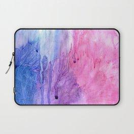 A color love story - part 2 Laptop Sleeve