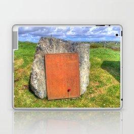 Lewis War Memorial, Stornoway Laptop & iPad Skin