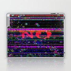 NO Laptop & iPad Skin