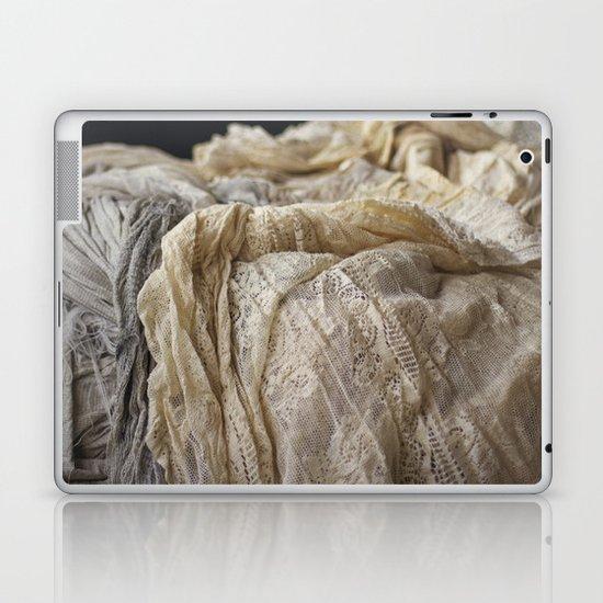 Lace Laptop & iPad Skin