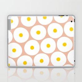 OVER EASY Laptop & iPad Skin