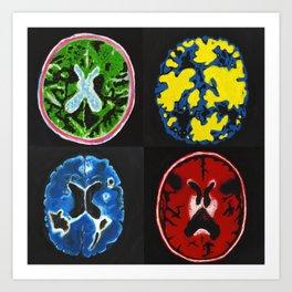 4 Brain Scans Art Print