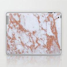 Intense rose gold marble Laptop & iPad Skin