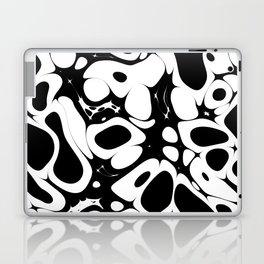 NOISE I - (Noise Pattern Series) Laptop & iPad Skin