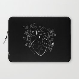 Impervious to Poison Laptop Sleeve