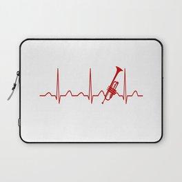 TRUMPET HEARTBEAT Laptop Sleeve