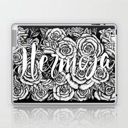 Hermosa Laptop & iPad Skin