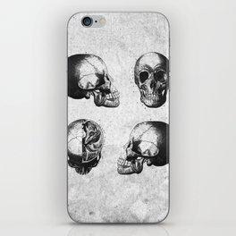 Vintage Medical Engravings of a Human Skull iPhone Skin