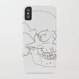 Vamp Skull iPhone Case