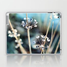 Simple Beauty Laptop & iPad Skin