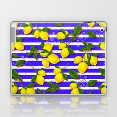 Pattern of lemons II Laptop & iPad Skin