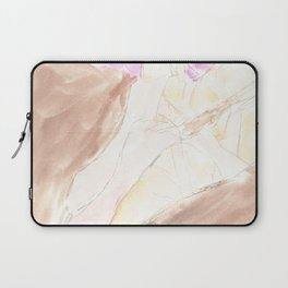 Waiting For Her Turns Laptop Sleeve