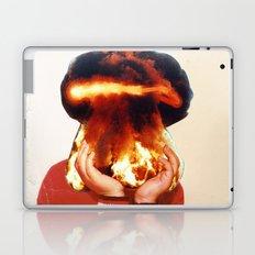 All my friends are dead Laptop & iPad Skin