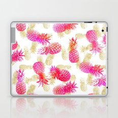 Pineapple Party Laptop & iPad Skin