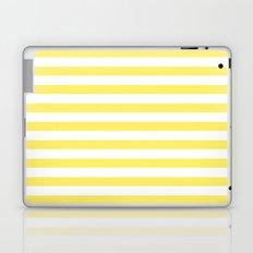 Lemon Yellow Stripes Laptop & iPad Skin