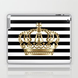 Black and White Stripes and Gold Crown 1 Laptop & iPad Skin