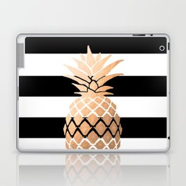 Pineapple Vibes Laptop & iPad Skin