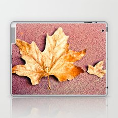 Does Size Matter? Laptop & iPad Skin