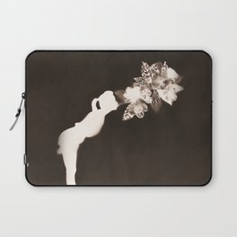 Negative Kiss Laptop Sleeve