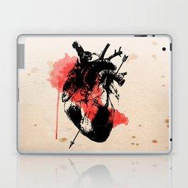 hearth Laptop & iPad Skin