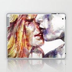 Honey Laptop & iPad Skin