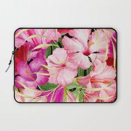 Tropical Power Flowers Laptop Sleeve