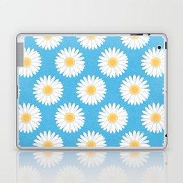 Spring Daisies_Blue Sky Laptop & iPad Skin