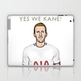 Yes We Kane! Laptop & iPad Skin