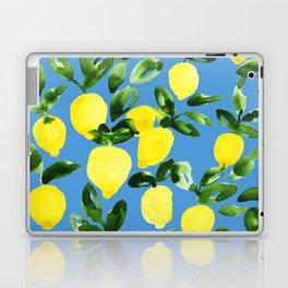 Blue Lemons Laptop & iPad Skin