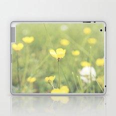 Yellow Flowers in a Field  Laptop & iPad Skin