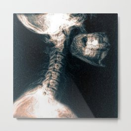 Pain in the Neck Metal Print