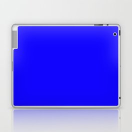 Curves in Yellow & Royal Blue ~ Royal Blue Laptop & iPad Skin