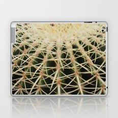 Ouch! Laptop & iPad Skin