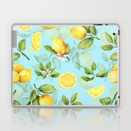 Vintage & Shabby Chic - Lemonade Laptop & iPad Skin