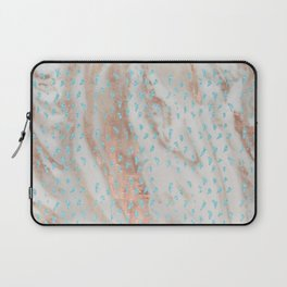 Rose gold metal marble with glitter aqua blue raindrops Laptop Sleeve