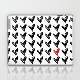 HEARTS ALL OVER PATTERN II Laptop & iPad Skin