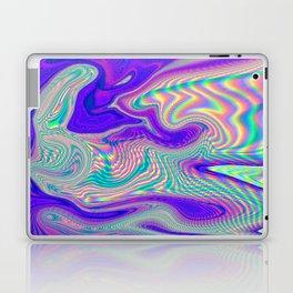 Pastel Laptop & iPad Skin